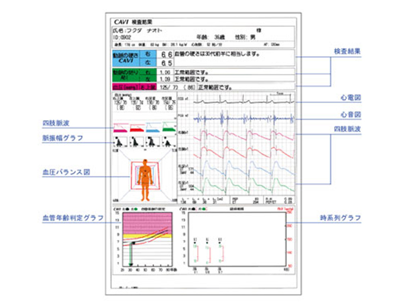 【画像】動脈硬化検査