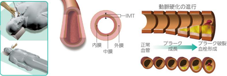【画像】頸動脈超音波検査