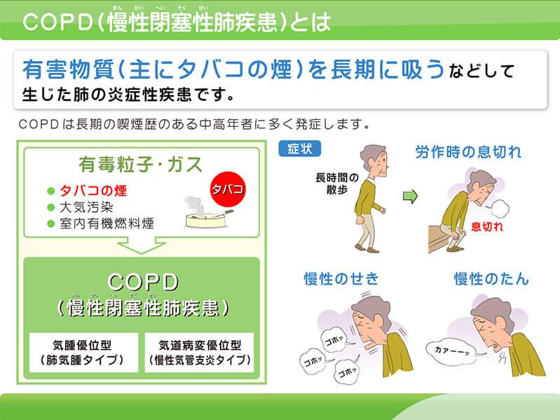 【図】慢性気管支炎とは