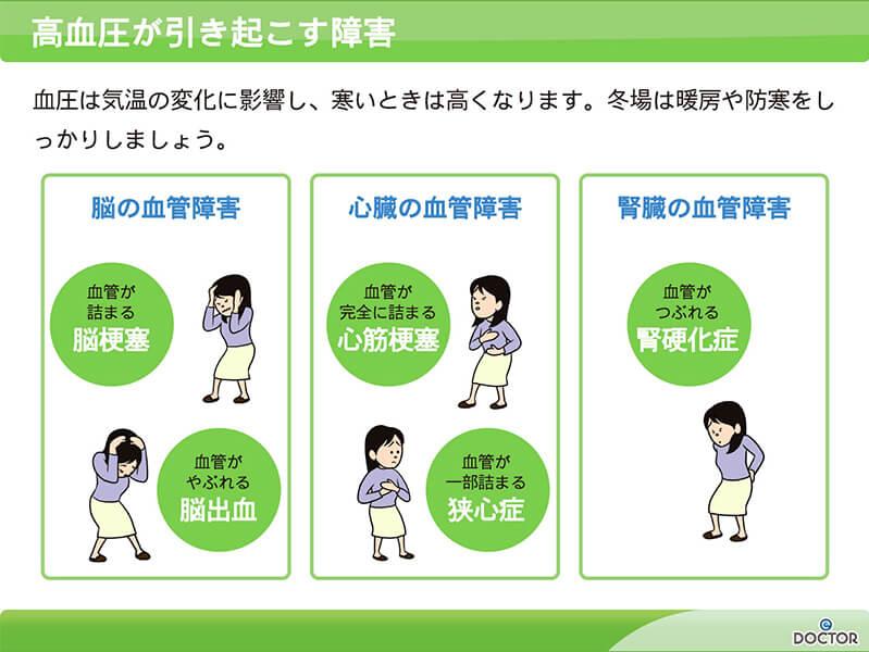 【図】高血圧